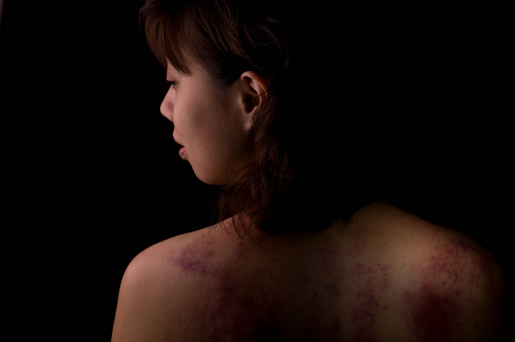 Woman with domestic abuse injuries